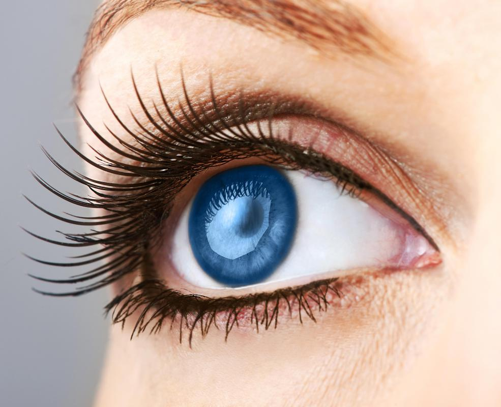 People with blue eyes have a high risk of melanoma cancer of the eye.