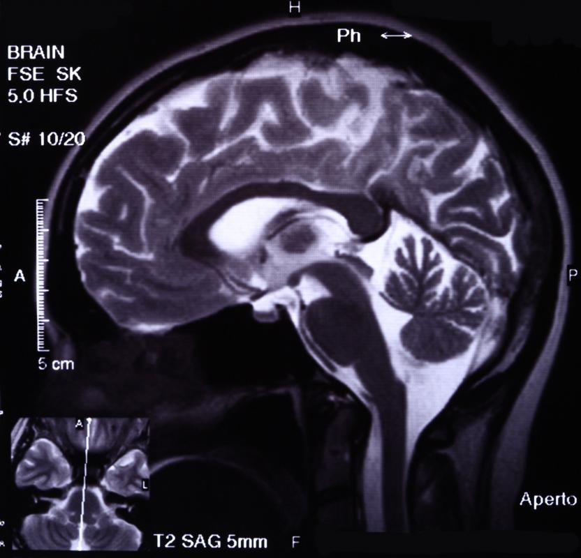 Some pituitary tumors may be visible on MRI scans.
