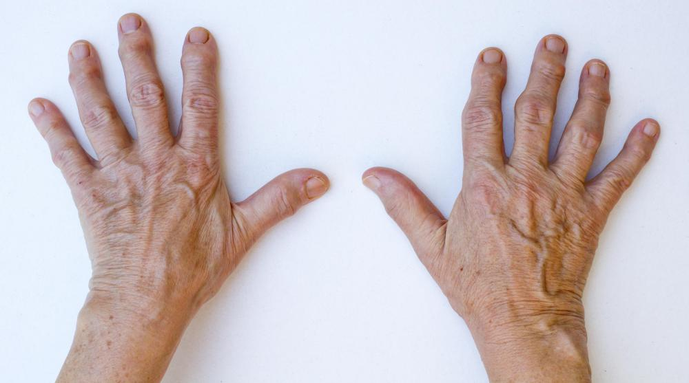 Arthritis commonly affects the fingers, whereas gout does not.
