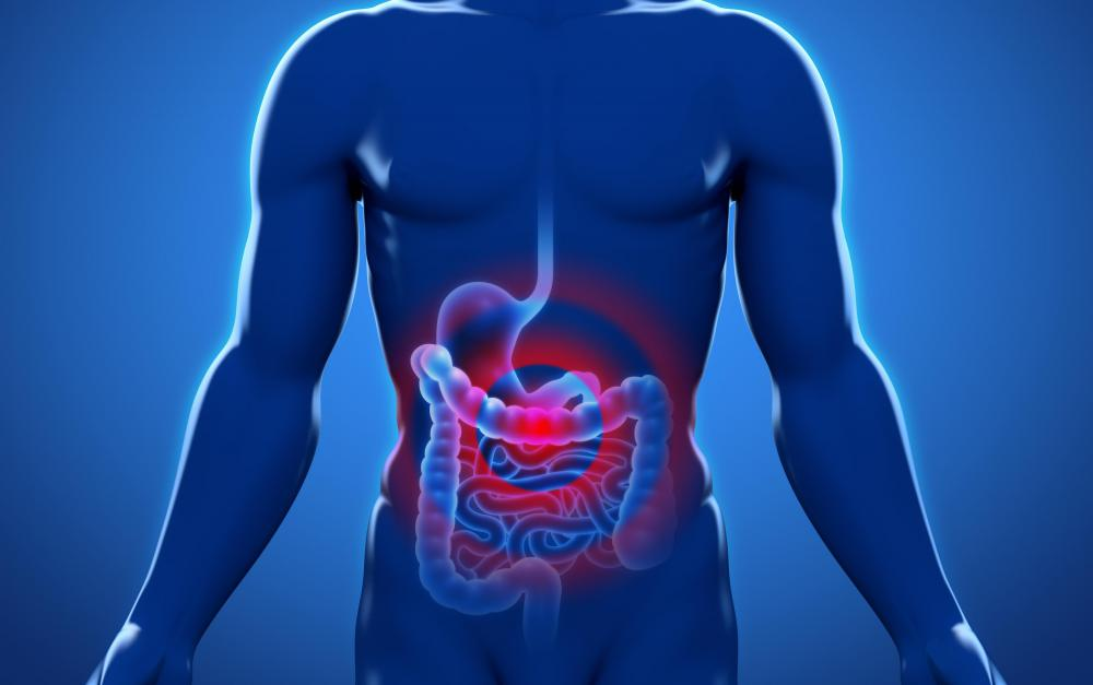 Growths on the digestive tract result may result in abdominal pain, nausea or bloating among diverticulitis patients.