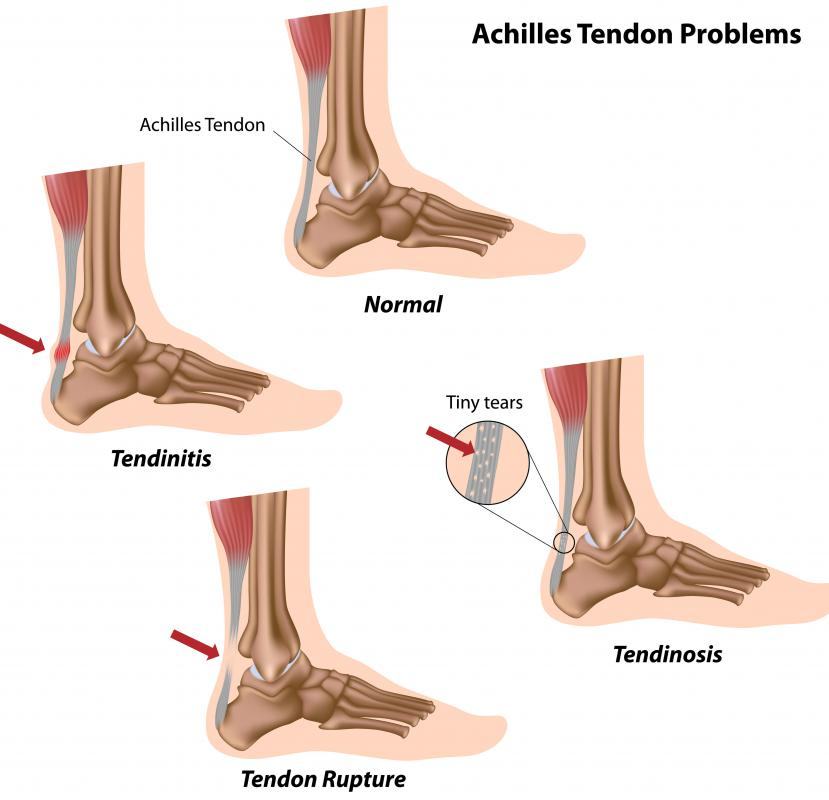This diagram shows some common problems with the Achilles tendon.