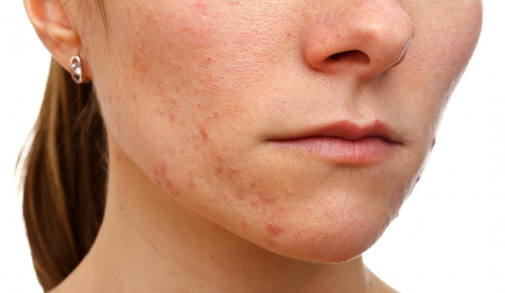 Some experts believe caffeine can aggravate acne.