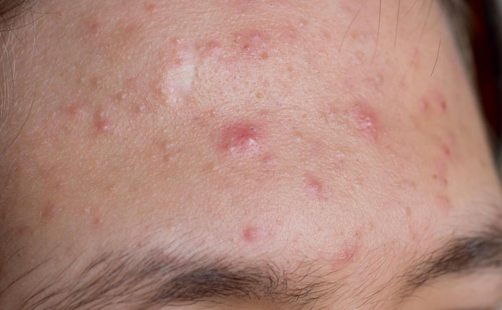 A close up of acne.