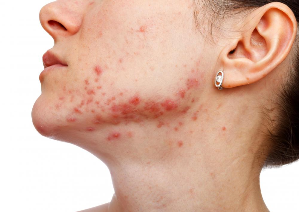 Severe acne is one symptom of congenital adrenal hyperplasia.