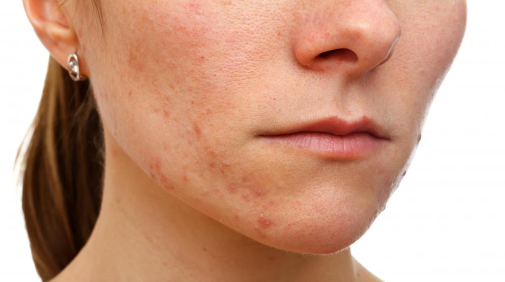Dermatologists often deal with acne problems.