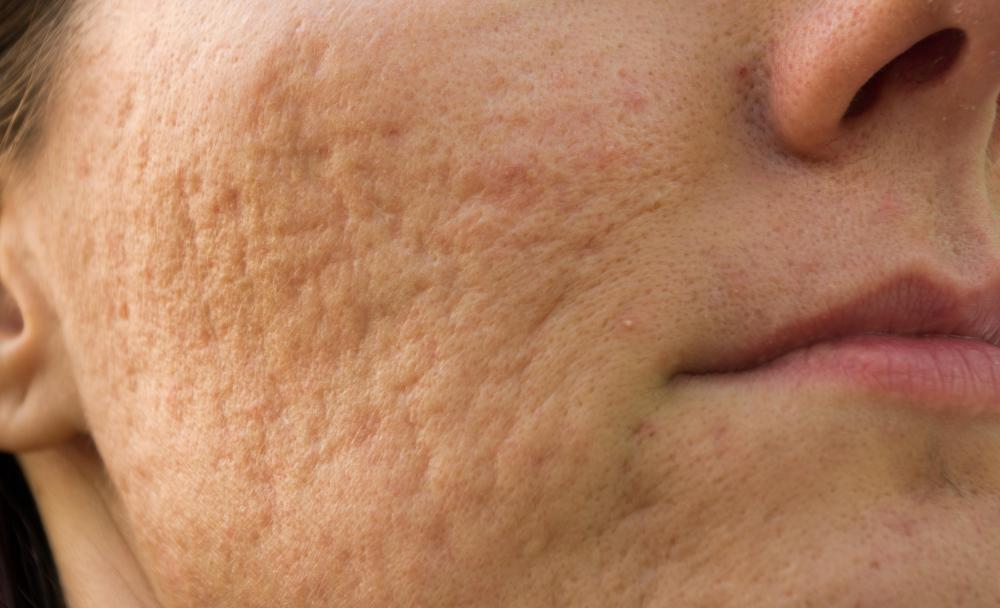 Acne can leave behind scars and marks.