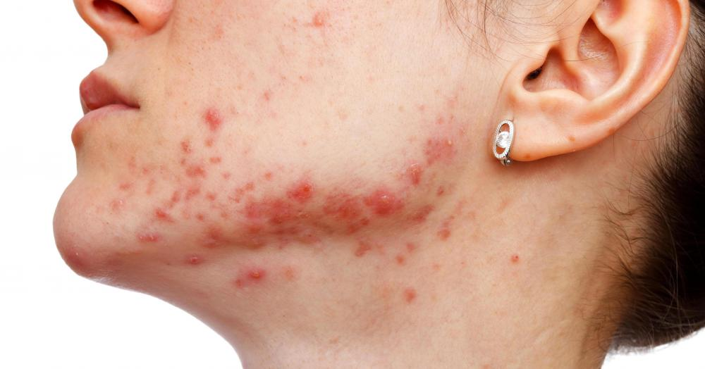 What Is Cystic Acne With Pictures