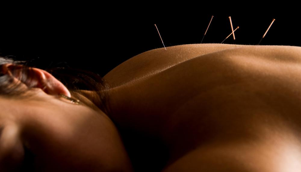 Acupuncture is often used to alleviate back pain.
