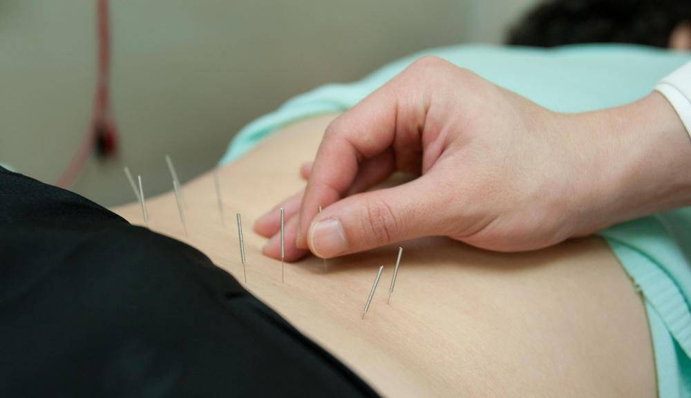 Acupuncture can help with hip pain.