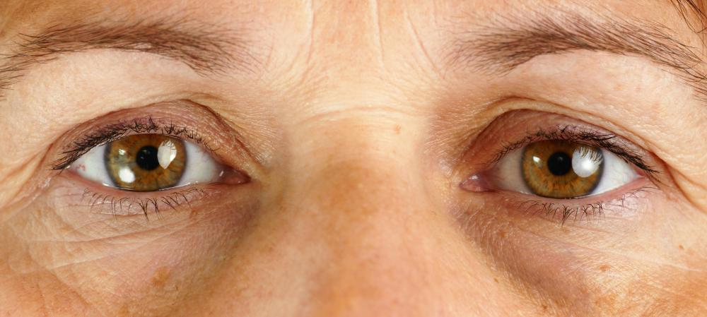 Laser eye treatment may help to correct vision problems.