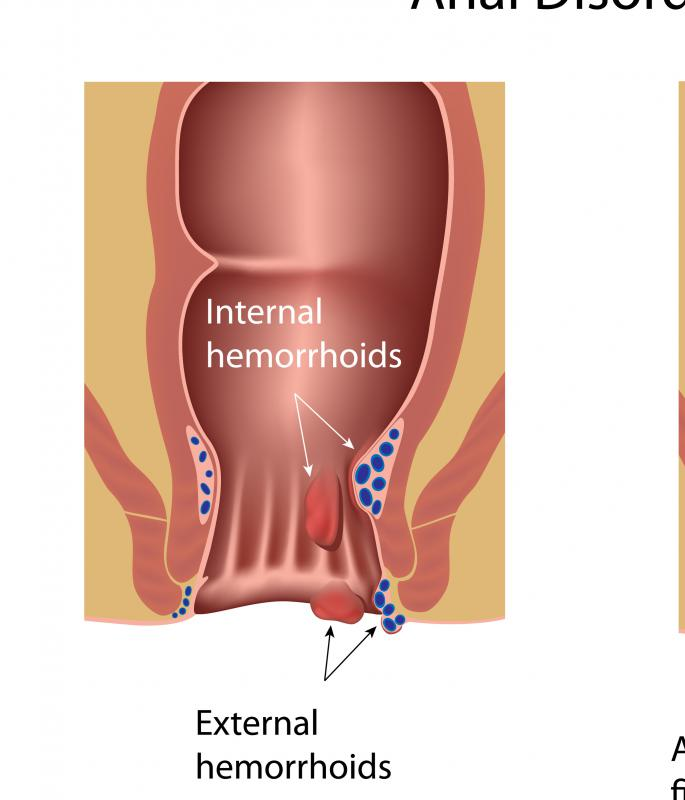 Chronic hemorrhoids can occur internally or externally.
