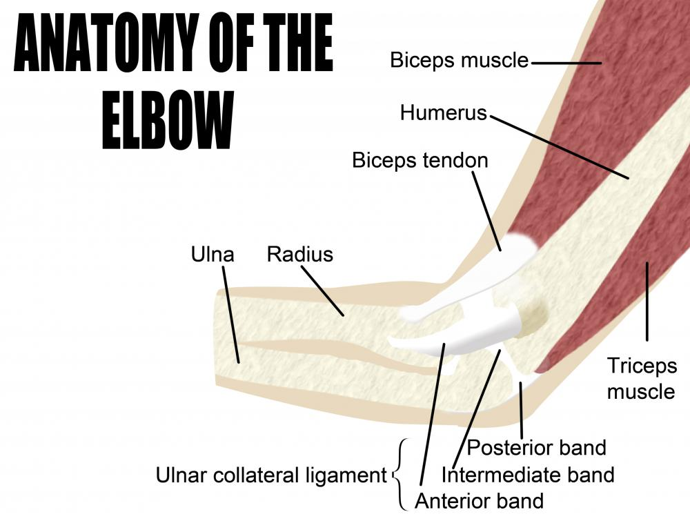 What are the Different Types of Tennis Elbow Support?