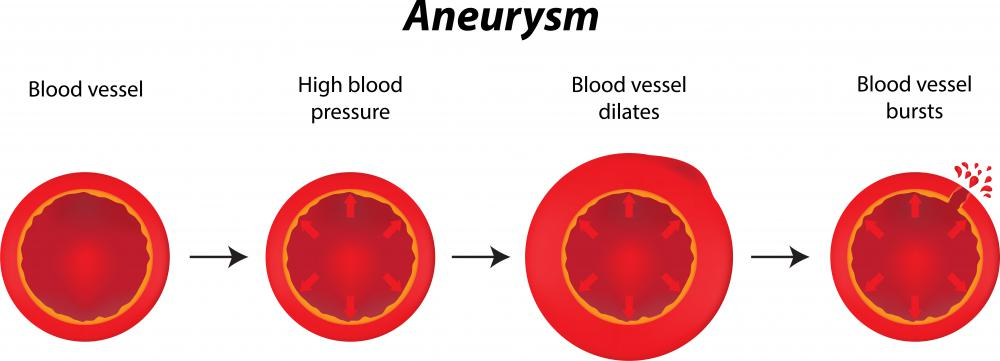 An aneurysm occurs when a blood vessel becomes weak or diseased and begins to stretch or balloon.