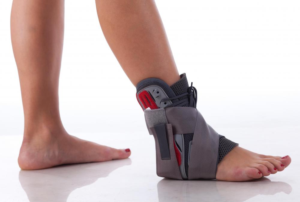 A walking brace may allow someone to walk despite an injury to their ankle.