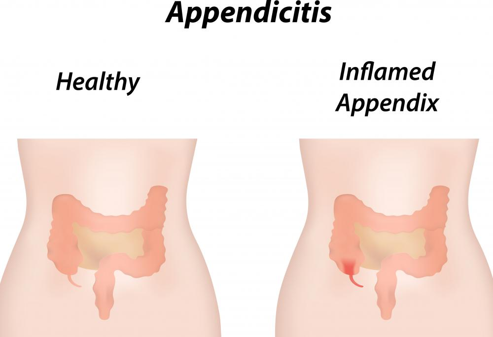 What Is The Function Of The Appendix With Pictures