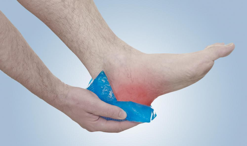 Applying ice to a sore heel may offer some relief.