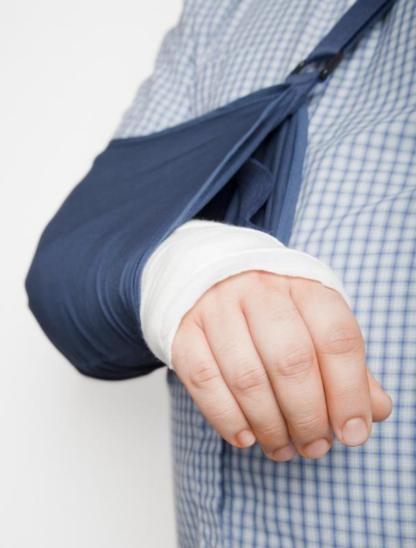 Elbow fractures are often treated with a splint and sling, but sometimes casts are used, too.