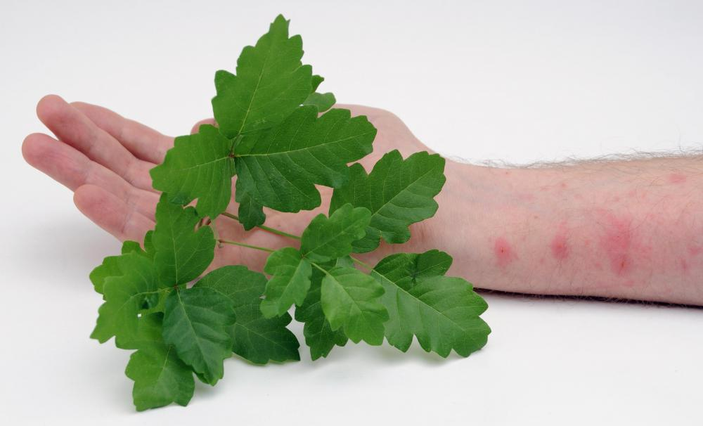 Poison oak can cause an itchy rash.