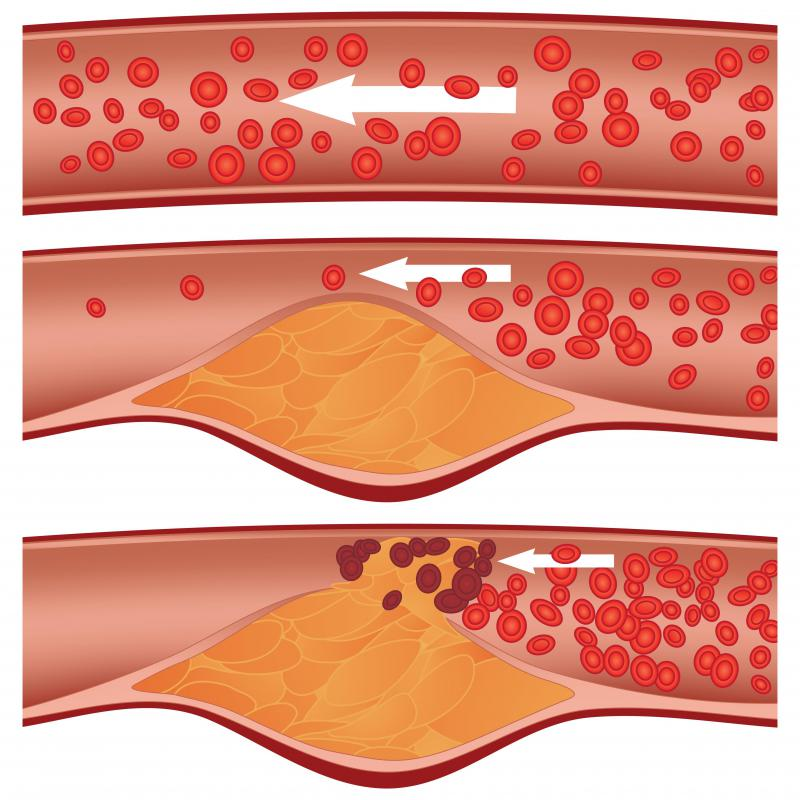 Clear Up Clogged Arteries & Eliminate Bad Cholesterol