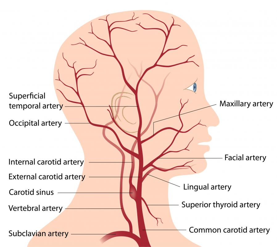 A diagram of the human head and neck, including the carotid artery.