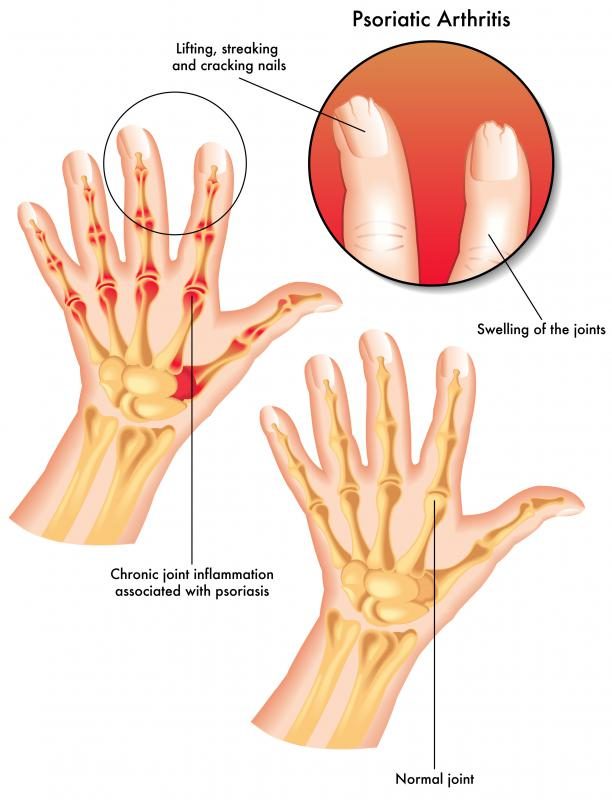 Psoriatic arthritis may spread to the joints and cause inflammation around them.