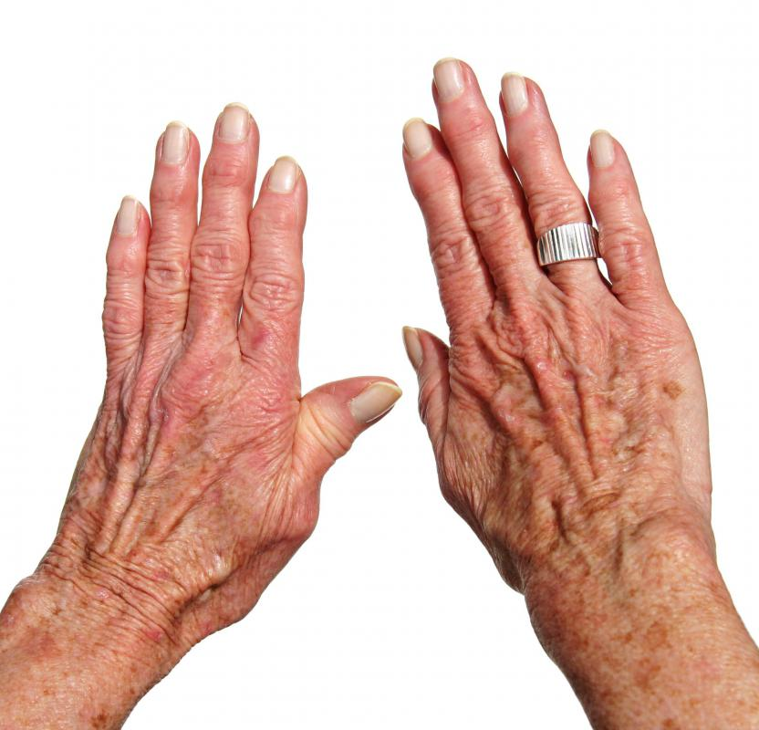 Anti-aging hand cream can lighten dark spots.
