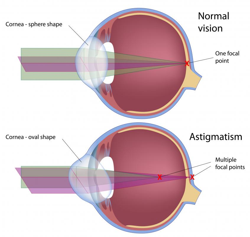 A normal eye and one with astigmatism.