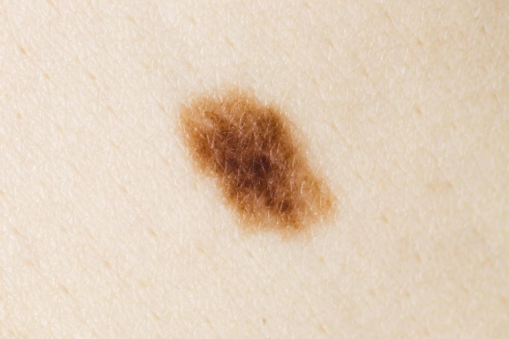 an asymmetrical mole with blurred edges