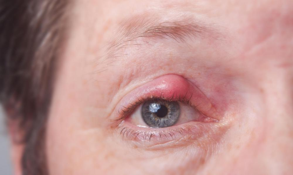 A meibomian cyst occurs on the eyelid.