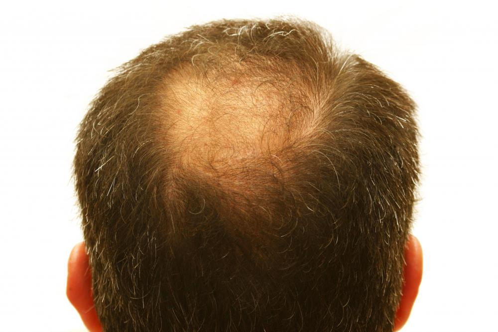 Hair loss is a possible side effect of testosterone.