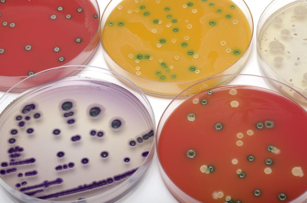 What does a Bacteriologist do? (with pictures)