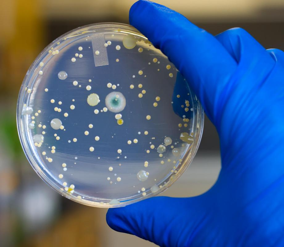 To create a culture, a sample is taken from a patient and put into a petri dish.