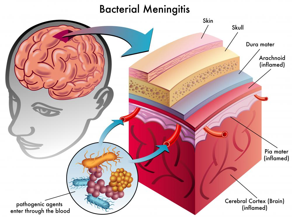 Bacterial meningitis is an infection where bacteria enters the bloodstream and infects the spinal cord.