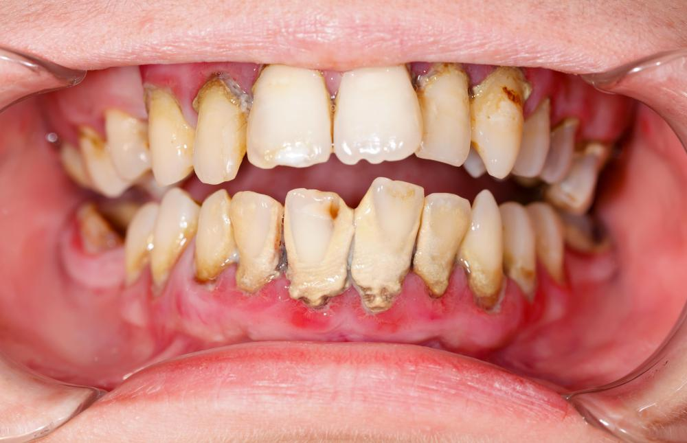 The function of dental pulp may be threatened by tooth decay.
