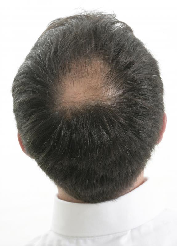 A man with a bald spot.