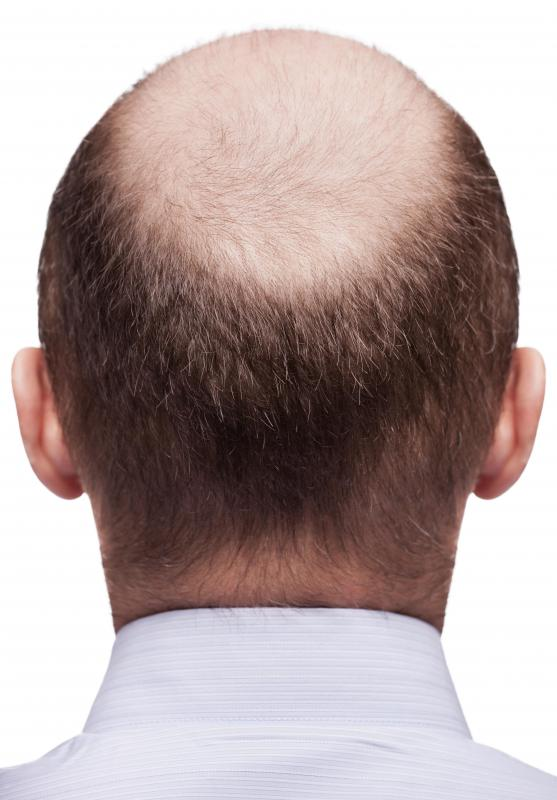 Androstanolone may cause male pattern baldness.