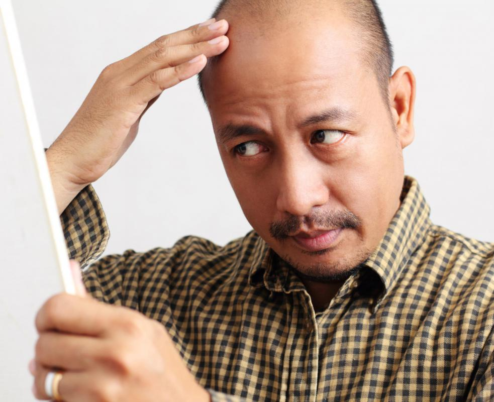 Telogen effluvium is the loss of hair because of physiological stress.