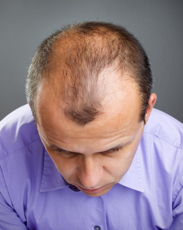 Men with androgenetic alopecia might not loss the hair on the side of their head.
