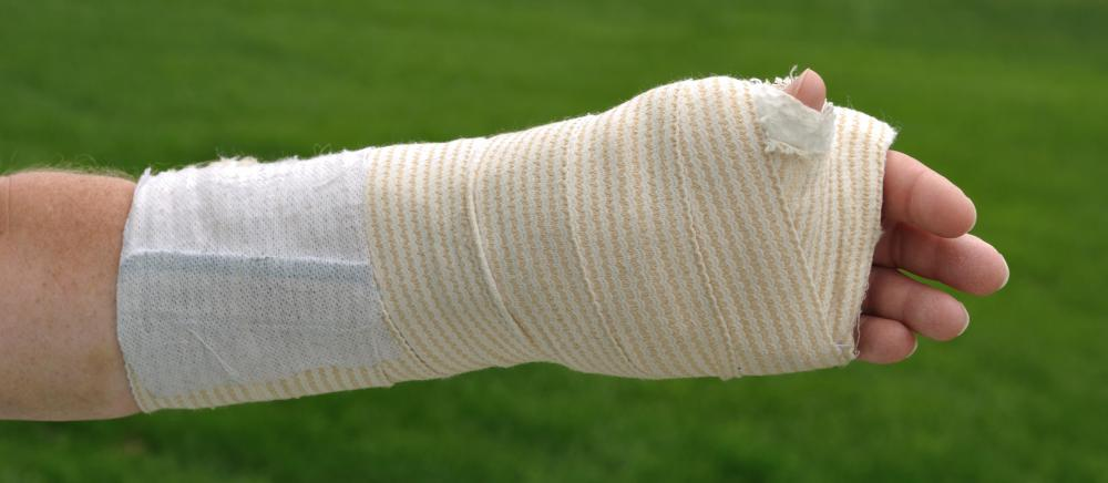 Wrapping a wrist in a compression bandage is common treatment for a sprain.