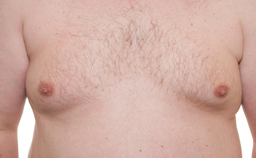 A male with XXY syndrome may experience gynecomastia.
