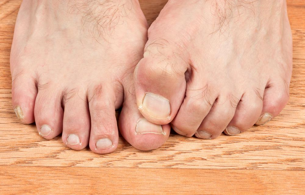 Walking barefoot through sand or soil can lead to contracting ancylostomiasis.