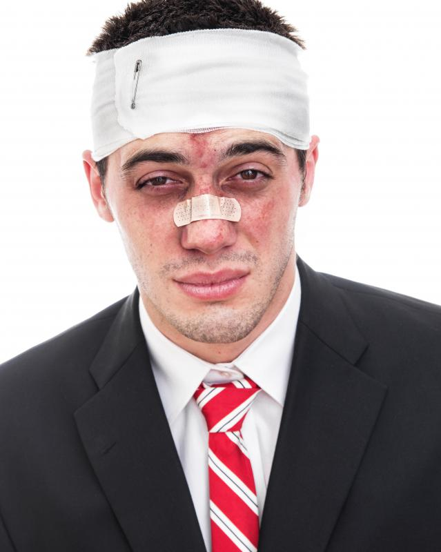 Hemiacial spasms can arise from facial trauma.