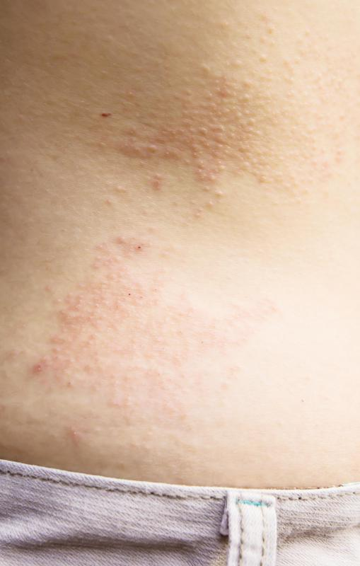 Eczema rashes can appear anywhere on the body, and are often accompanied by dryness and itching.