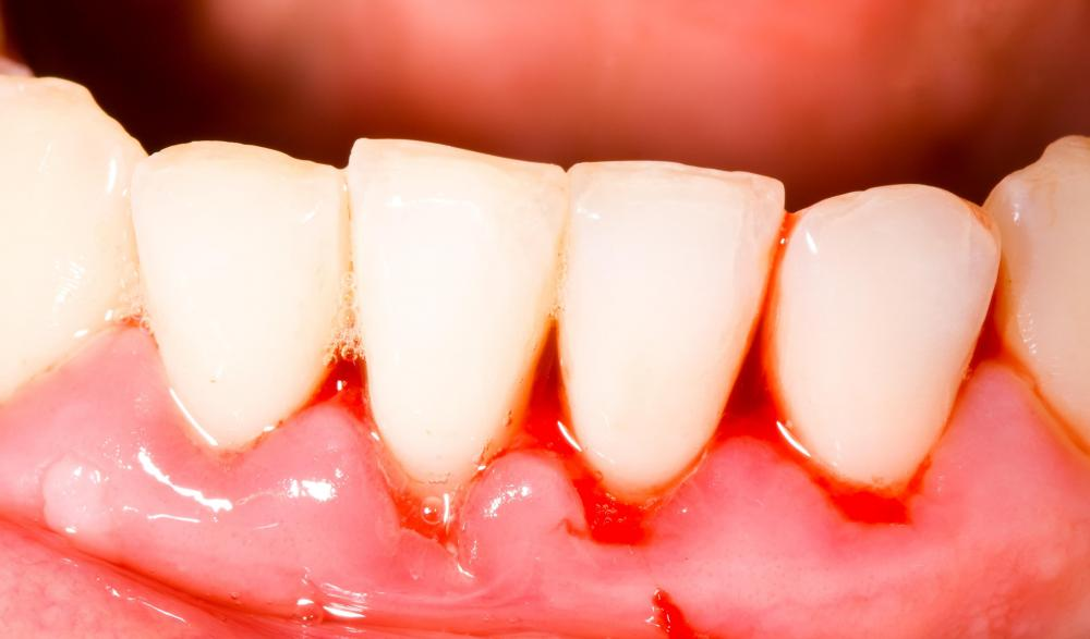 Underlying conditions can cause bleeding gums.