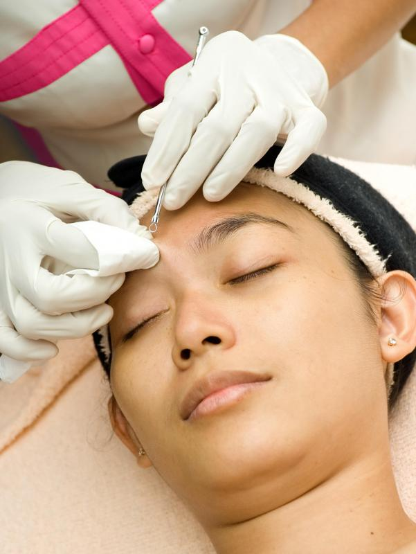 A comedone extraction is one option for dealing with acne.
