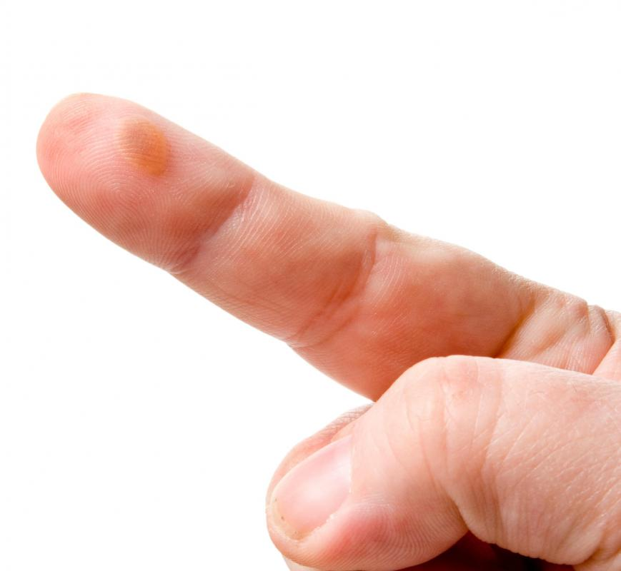 A water blister on a finger.