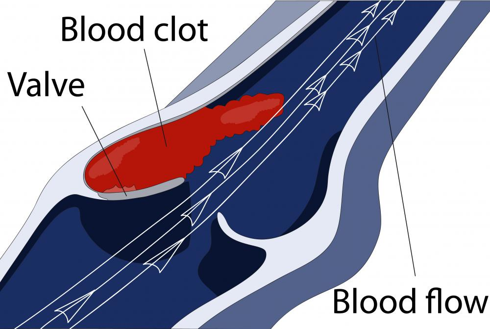 Early detection and resolution of a blood clot in the foot is vital.