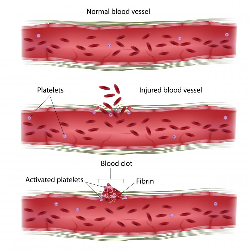 Platelets prevent the loss of red blood cells after an injury.