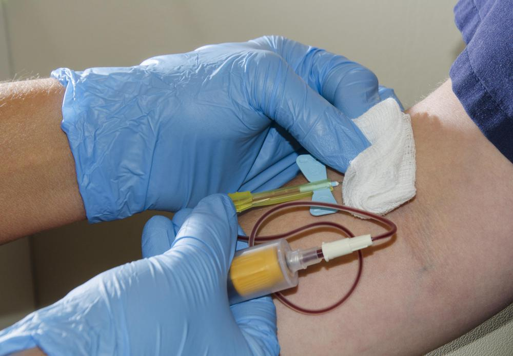 Conducting a creatinine blood test requires a blood sample to be extracted from a vein in the arm.