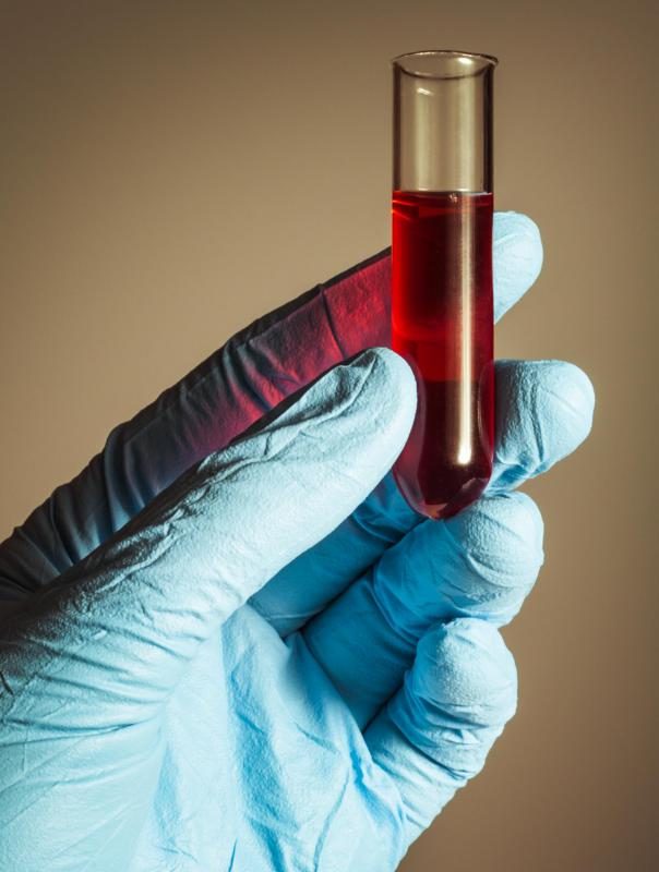 The blood count is determined via testing samples of blood.